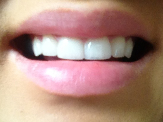 smile1-after