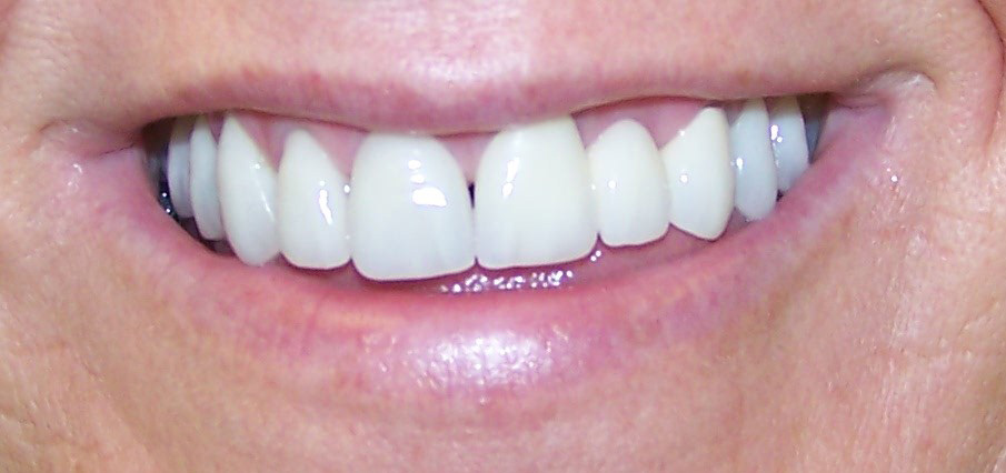 smile4-after