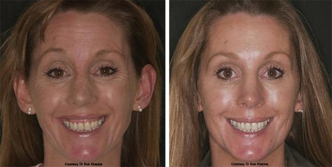 Wrinkle correction treatment - Wolds Dental Studio