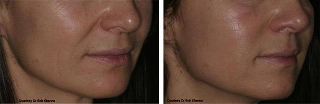 dermal-before-after