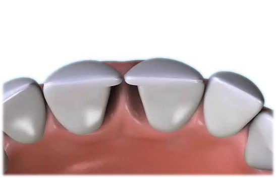 veneers-for-diastema2