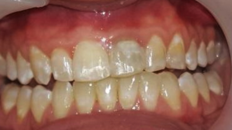 Cosmetic fixed braces-after