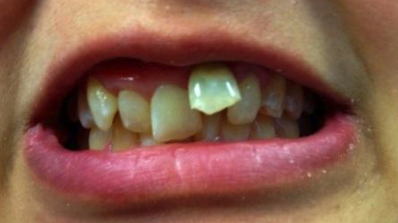 Cosmetic fixed braces-before