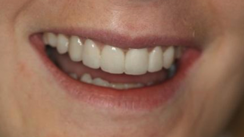 cosmetic teeth-after