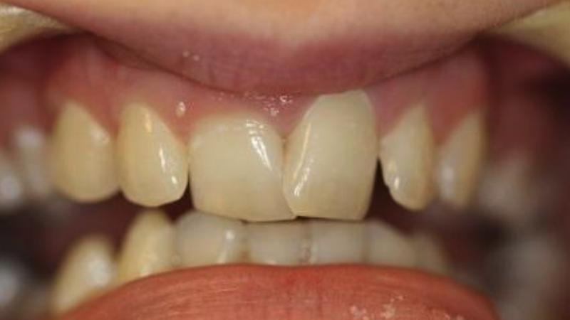 cosmetic teeth-before